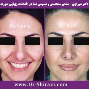 جراحی بینی گوشتی | جراحی زیبایی بینی | متخصص جراحی بینی