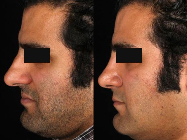 جراحی بینی قوزدار و افتاده یک آقا توسط دکتر شیرازی
