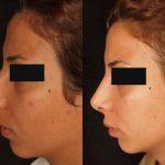 نمونه عمل بینی یک خانم با بینی قوزدار