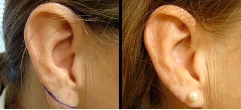عمل زیبایی گوش توسط دکتر شیرازی