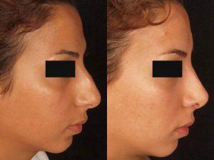 آنچه در ارتباط با جراحی بینی باید بدانید