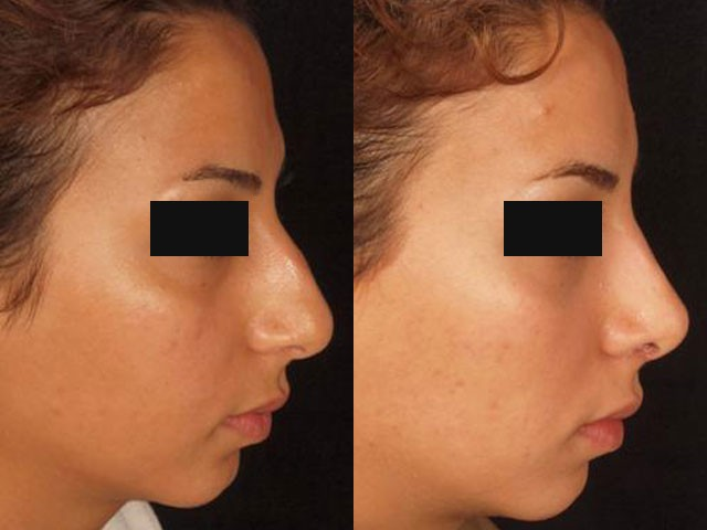 نمونه قوز بینی استخوانی و جراحی دکتر شیرازی