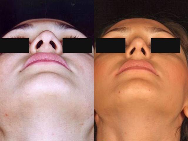 جراحی بینی در یک دختر جوان دکتر شیرازی
