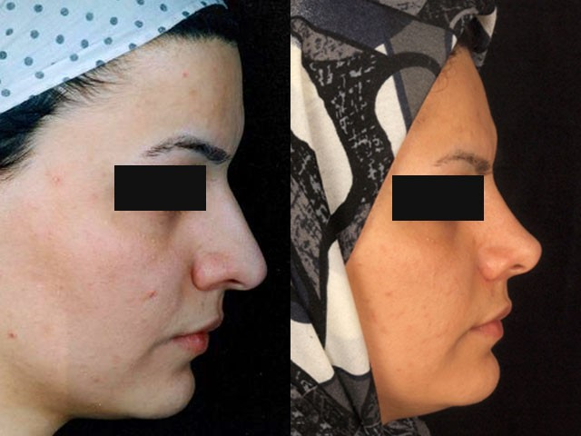 جراحی بینی نیمه فانتزی خانم دکتر شیرازی