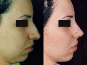 روش باز و بسته در جراحی زیبایی بینی