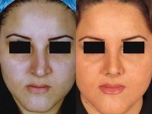 مراحل بعد از عمل بینی تا بهبودی کامل