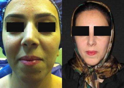 نمونه جراحی بینی با نوک گوشتی توسط دکتر شیرازی