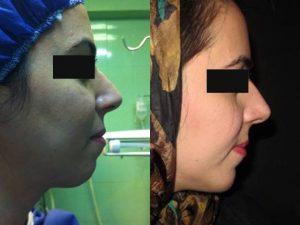 مراقبتهای بعد از جراحی بینی