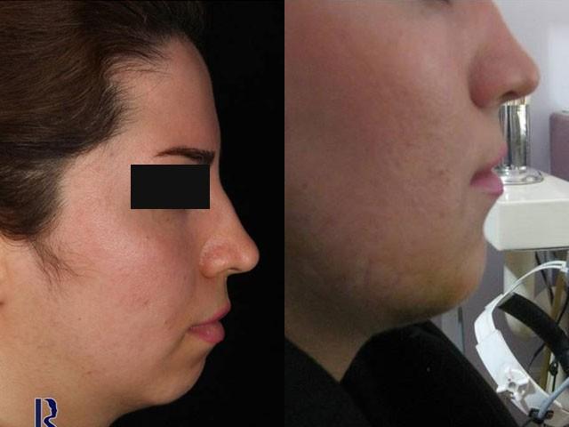 پروتز چانه عکس قبل و بعد نمونه جراحی دکتر شیرازی