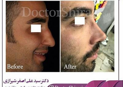 جراحی زیبایی بینی در مردان