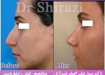 عکس قبل و بعد از جراحی بینی