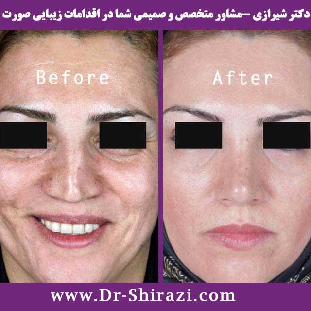دکتر غفاری جراح بینی در ساری