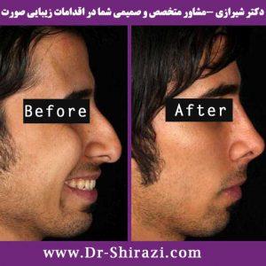 جراحی بینی اولیه و جراحی ثانویه بینی