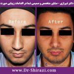 قبل و بعد جراحی بینی گوشتی آقایان دکتر شیرازی
