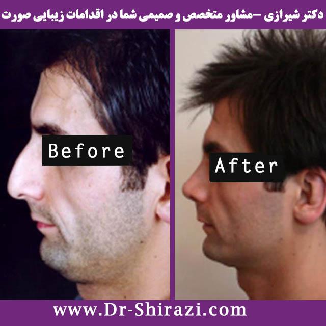 جراحی بینی استخوانی مردانه توسط دکتر شیرازی