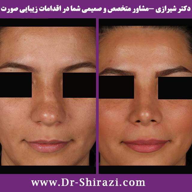 عمل بینی دکتر شیرازی و کوچک کردن بینی گوشتی