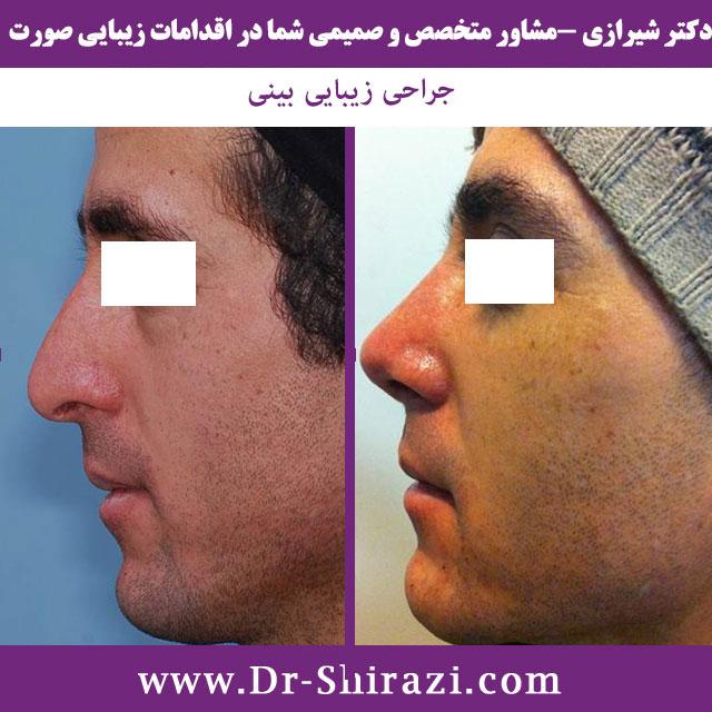 جراحی بینی مردانه با مدل طبیعی