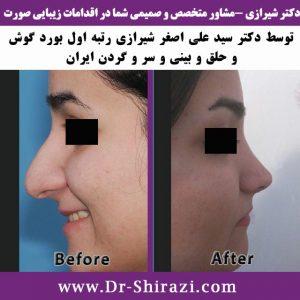 عمل زیبایی بینی همزمان با عمل جراحی پلک