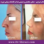 دکتر شیرازی و عمل بینی نیمه عروسکی
