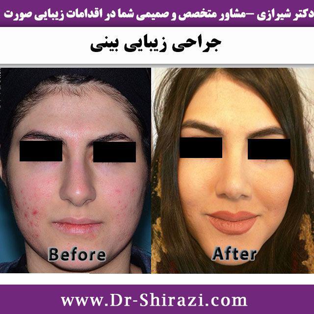 نمونه عمل بینی زیبایی کار دکتر شیرازی