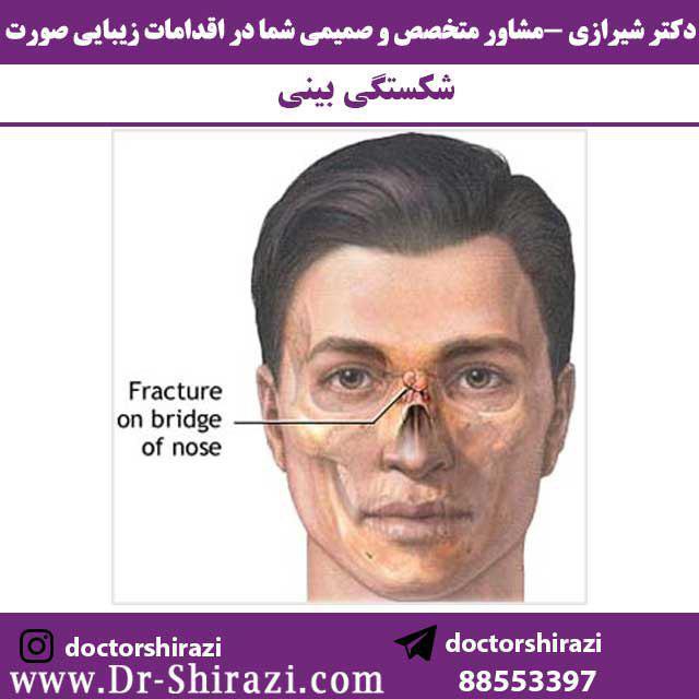 شکستگی بینی و جراحی آن