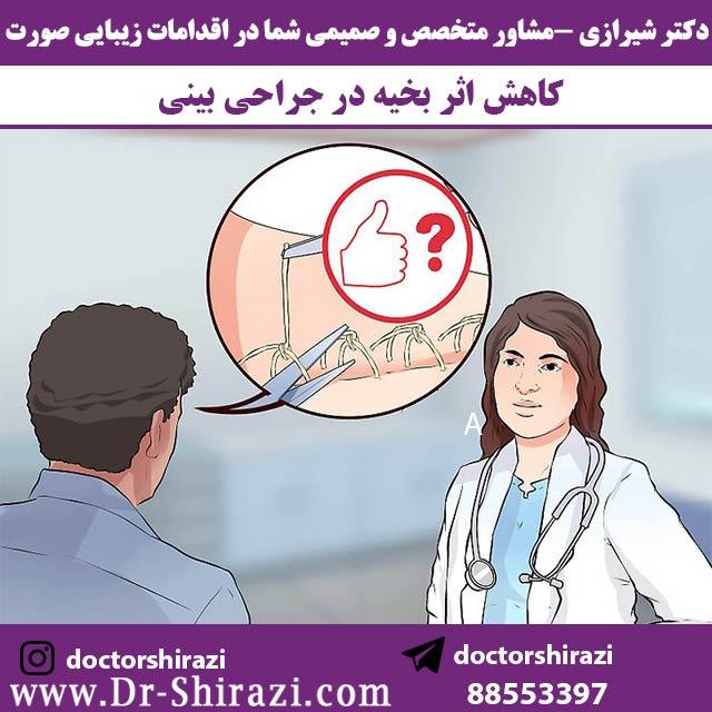 چگونگی کاهش اثر بخیه بینی در جراحی