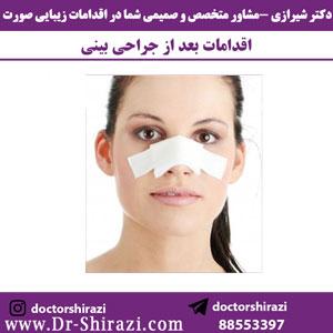 اقدامات بعد از جراحی بینی