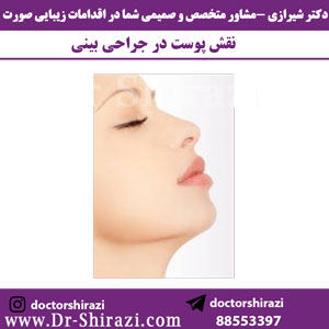نقش-پوست-در-جراحی-بینی