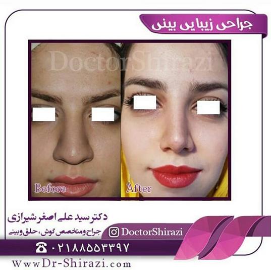 جراحی بزرگ کردن بینی