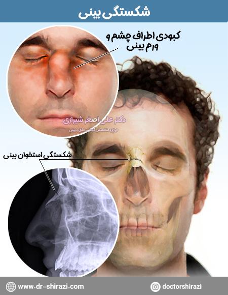 علائم شکستگی بینی
