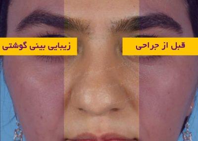 قبل از جراحی بینی گوشتی