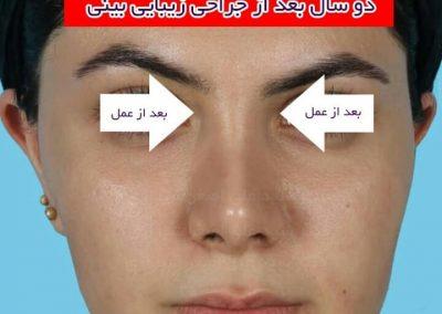 نتیجه ی جراحی بینی گوشتی
