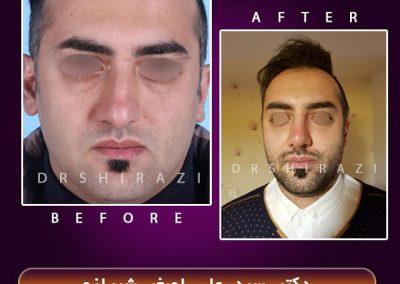 جراحی انحراف بینیجراحی انحراف بینی