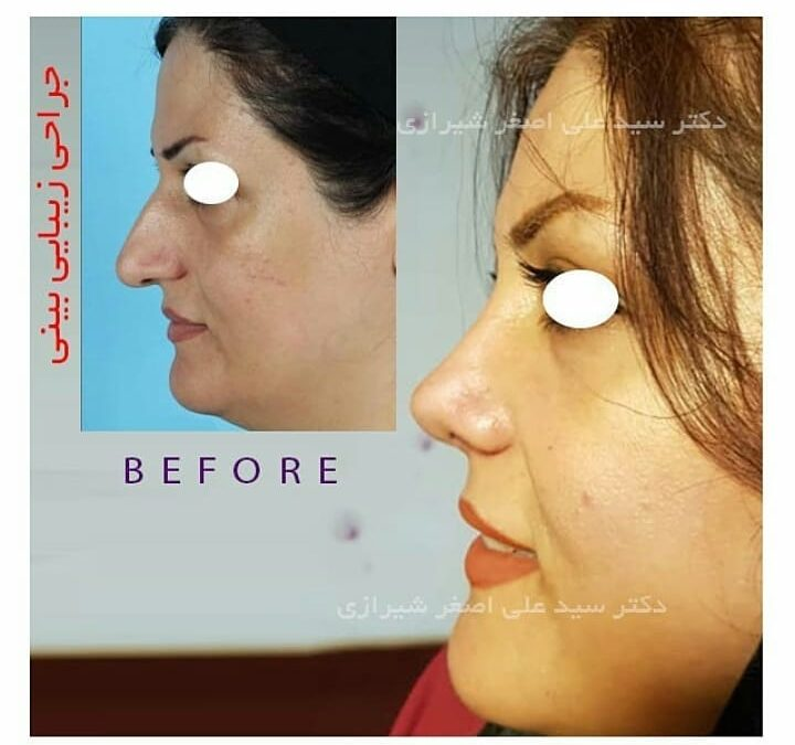 جراحی زیبایی بینی در سنین بالا