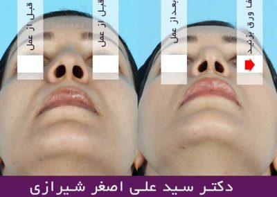 جراحی زیبایی بینی طبیعی