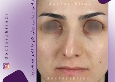 جراحی انحراف شدید بینی
