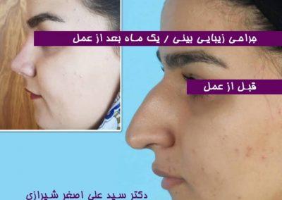 جراحی قوز شدید بینی