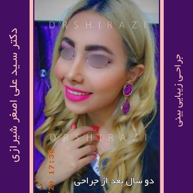 جراحی زیبایی بینی فانتزی دکتر شیرازی