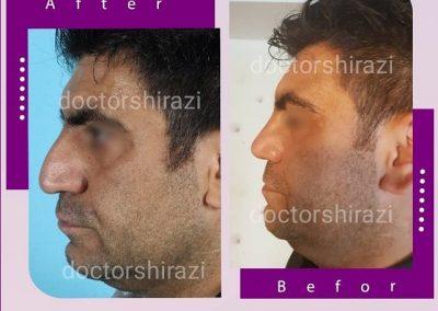 جراحی بینی مردانه طبیعی
