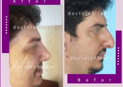 جراح بینی مردانه در تهران