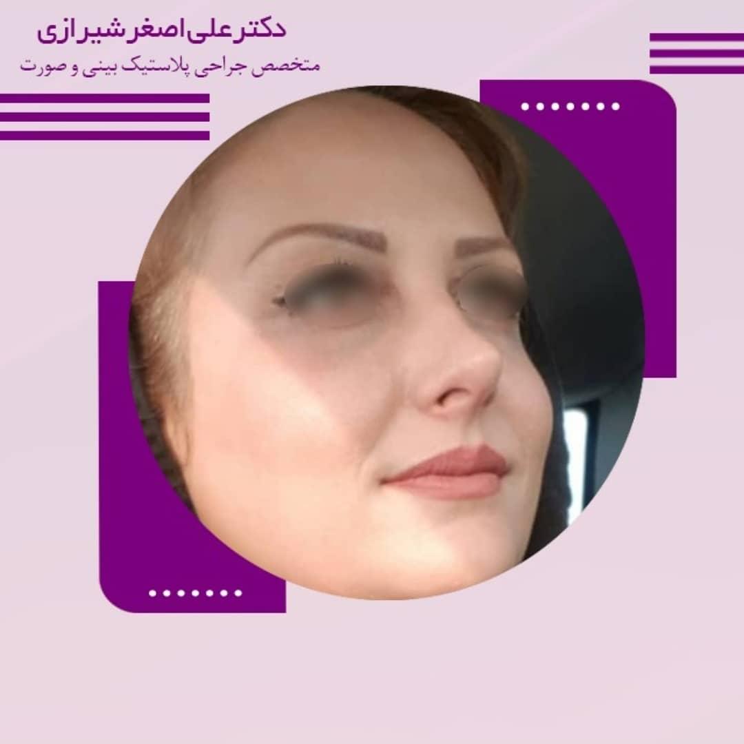 نمونه جراحی بینی نیمه عروسکی دکتر علی اصغر شیرازی